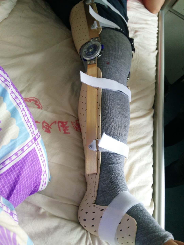 长下肢支具(加可调节支条)