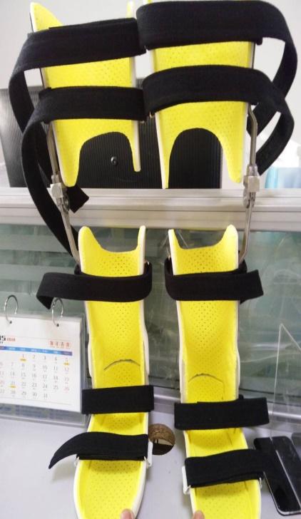 膝内外翻矫形器