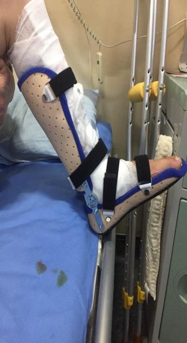 踝足矫形器(关节加可调节支条)